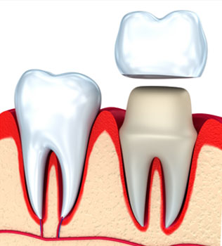 Tooth Caps, Dental Crowns in Hutto TX