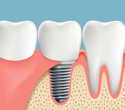 Dental Implants in Hutto TX