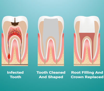 Endodontic Root Canal Therapy in Hutto